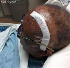 Post Surgery #2